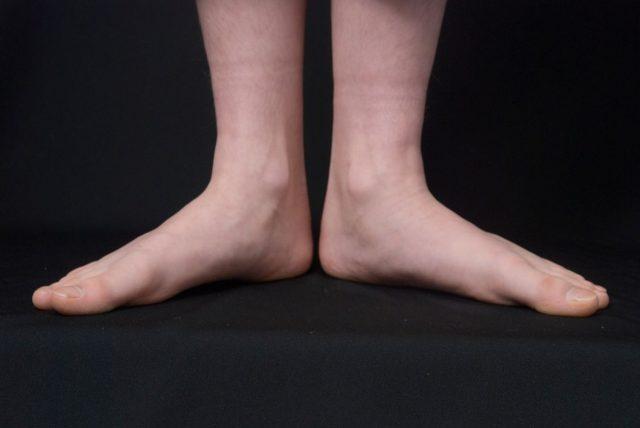 ramno stopalo