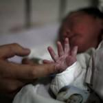 zika bebe